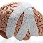 Los Mejores Abogados en Español de Lesiones Cerebrales Para Mayor Compensación en Long Beach California